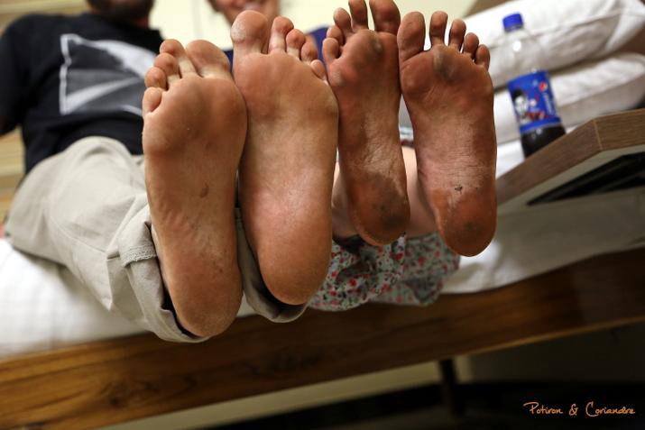 Les pieds cracras